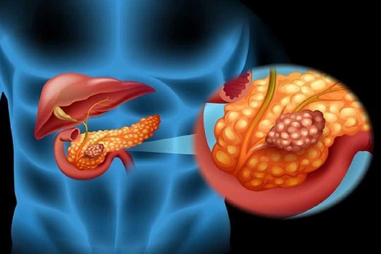 علائم سرطان لوزالمعده چیست؟