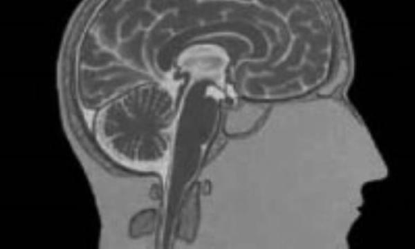مننژیت؛ عفونت مغز